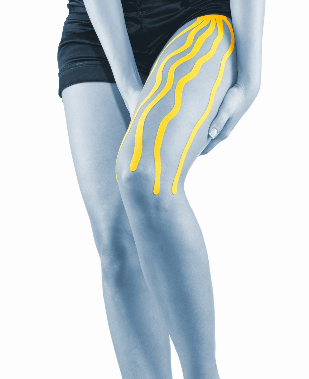 Knee treated with tape therapy